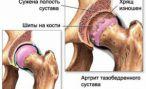 Артрит, артроз. Лечение