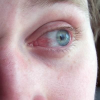 Воспаление глаз.