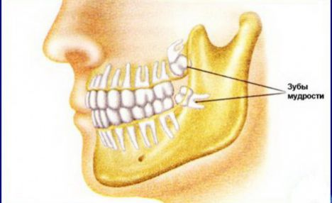 Рост зубов мудрости остановлен