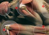 10 вещей, которые вы должны знать о фибромиалгии