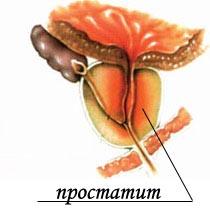 Онкология предстательной железы клиника