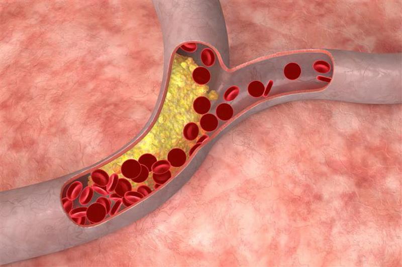 Анализ крови холестерин 7 фотография