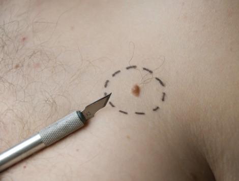 Симптомы и лечение рака кожи