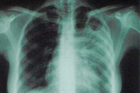 Симптомы и лечение туберкулеза
