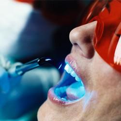 побочные эффекты отбеливания зубов