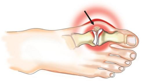artrit-palcev-nog