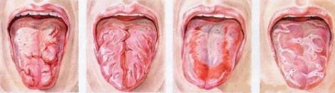 запах изо рта языка