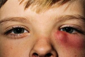 цистит глаза - воспаление слезного мешка