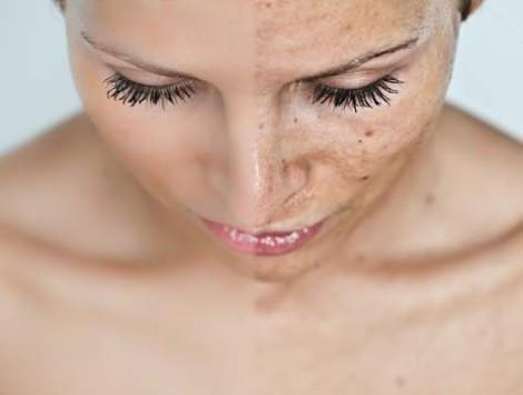 как смыть загар с лица