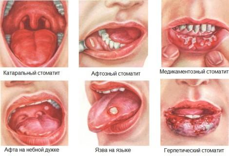 Как лечить стоматит во рту у ребенка в домашних условиях фото